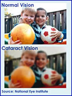 cataract-2